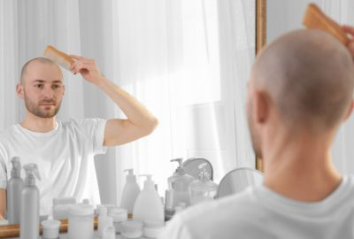 What Is Male Pattern Baldness?